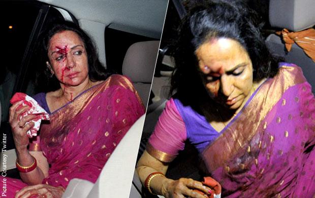 Hema Malini Injured In A Car Mishap