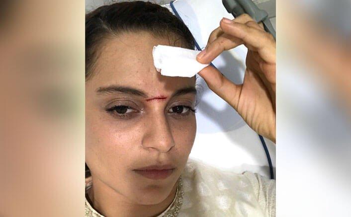 Kangana Ranaut Injured On The Sets Of Manikarnika - The Queen Of Jhansi