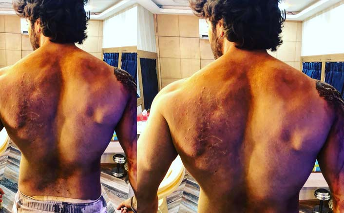 Varun Dhawan gets battle scars on 'Kalank' set