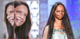 People finding beauty in an acid-burnt face: Laxmi