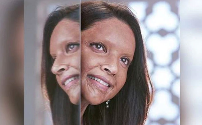 Chhapaak Trailer: Here's When The Trailer Of Deepika Padukone Starrer Will Drop