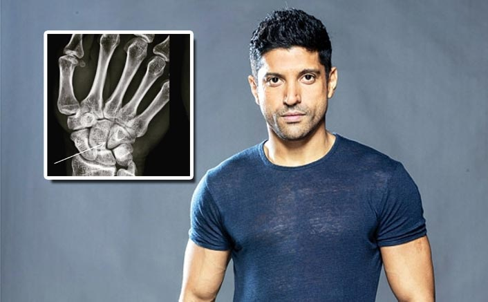 Toofan: Farhan Akhtar Shares The X-Ray Report Of His First 'Legit' Boxing Injury
