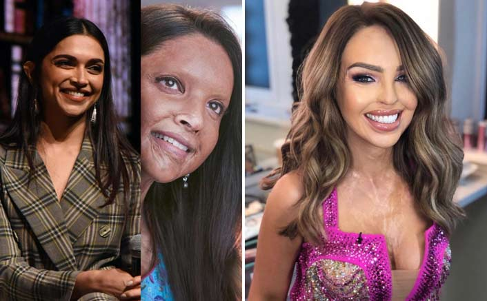 Chhapaak: Activist Katie Piper Lauds The Trailer; Deepika Padukone Responds With A Heartwarming Reply