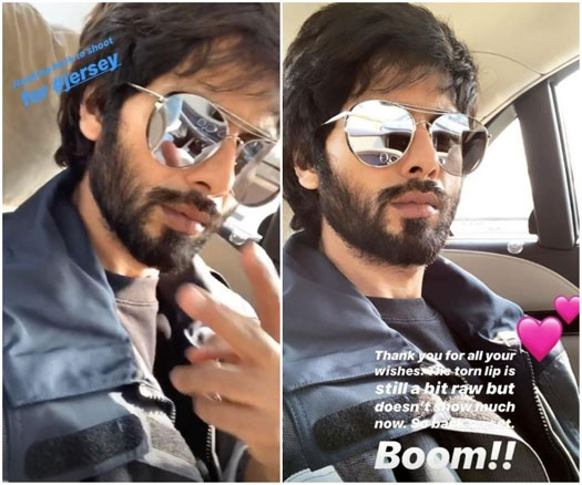 Shahid Kapoor Flies To Chandigarh For Jersey's Shoot Post Lip Injury, Updates That His Wound Is Still Raw