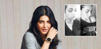 "Hats Off! Shruti Haasan Admits Undergoing Plastic Surgery: ""Not Ashamed To Admit…"""