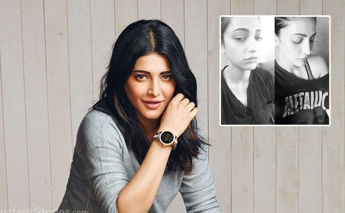 "Hats Off! Shruti Haasan Admits Undergoing Plastic Surgery: ""Not Ashamed To Admit…"""