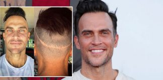 Cheyenne Jackson REVEALS The 'Devastating Truth' Of Undergoing 5 Hair Transplant Surgeries