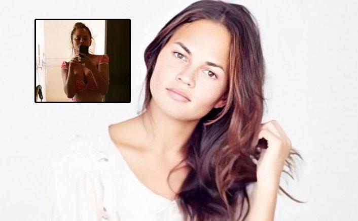 Chrissy Teigen Is Happy To Wear A Bikini Post Her Breast Implants Removal Surgery, PICS