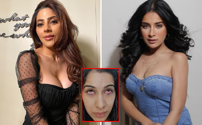 Bigg Boss 14: Sara Gurpal's Pic Of Deeply Injured Eye By Nikki Tamboli Go Viral, Check Out!