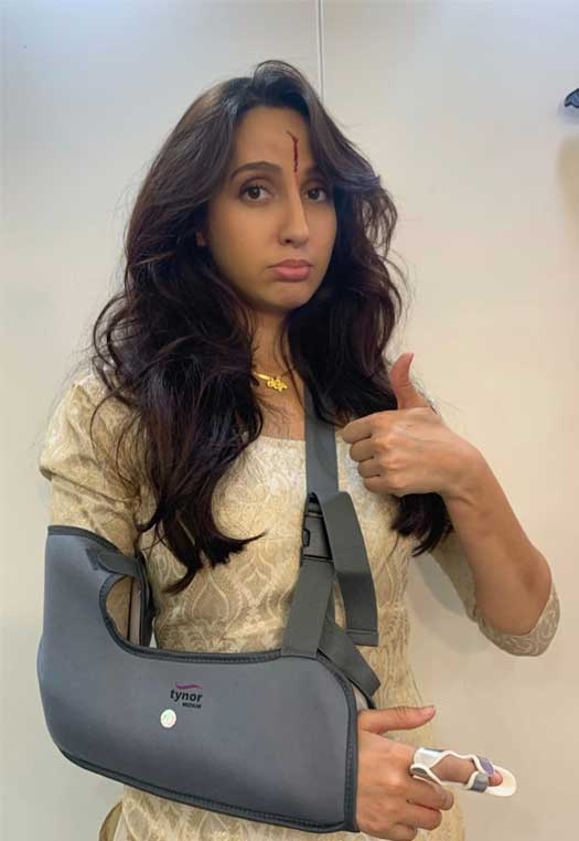 nora fatehi sheds real blood for bhuj the pride of india scar on face depicts dedication 01